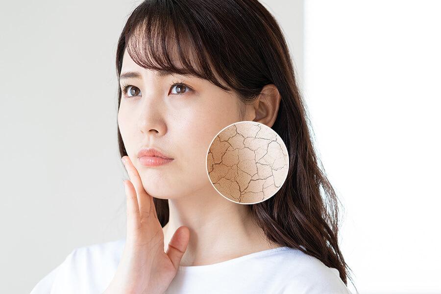 肌 の カサカサ を 治す 方法